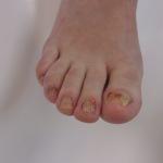 nagelreparatie 1